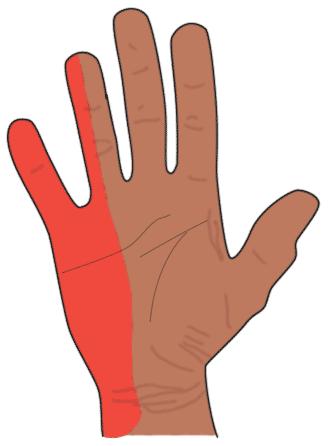 Heidemann - Hand- und Ellenbogenchirurgie in Hürth