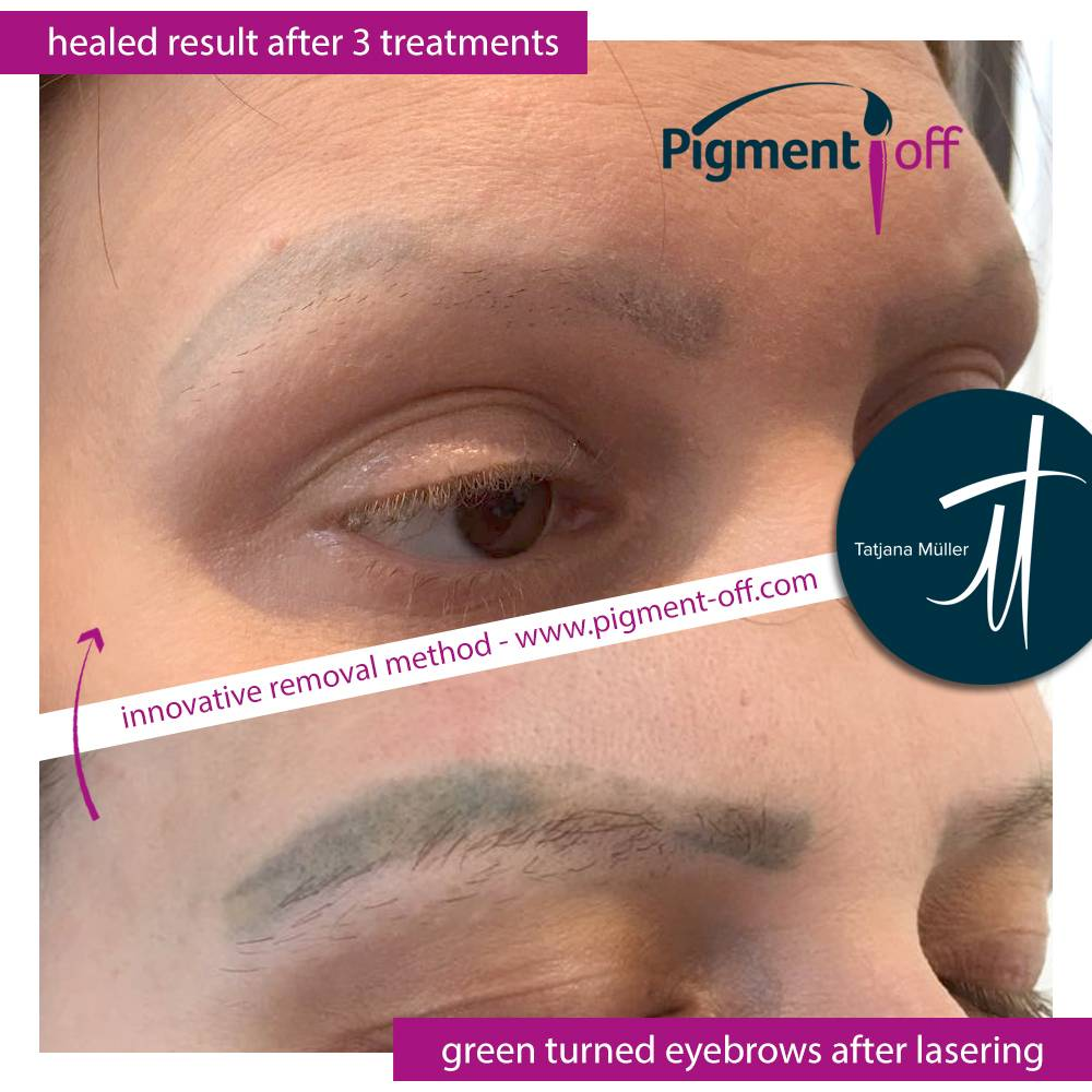removal_of_green_turned_eyebrows_after_laser_3_sessions_with_pigmentoff_remover_1_20180507_1647901092